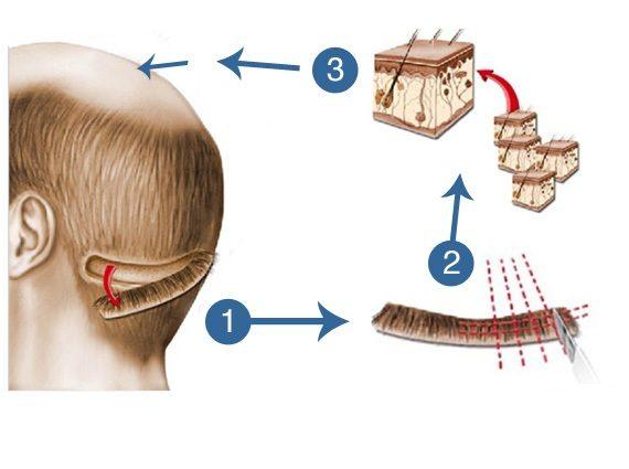 Dr. Suneet Sohi Hair Transplant Trichophytic Closure