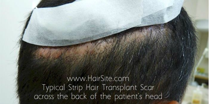 Typical Strip Hair Transpant Linear Scars