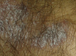 Scalp Inflammation Hair Loss