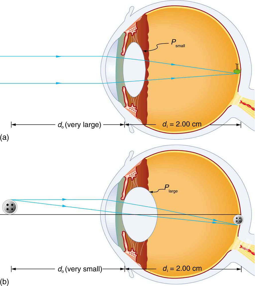 medium resolution of two cross sectional views of eye anatomy are shown in part a of the