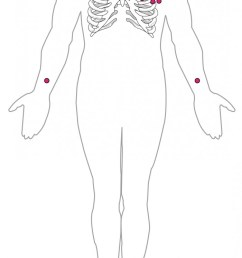 this diagram shows the points where electrodes are placed on the body for an ecg  [ 700 x 1158 Pixel ]