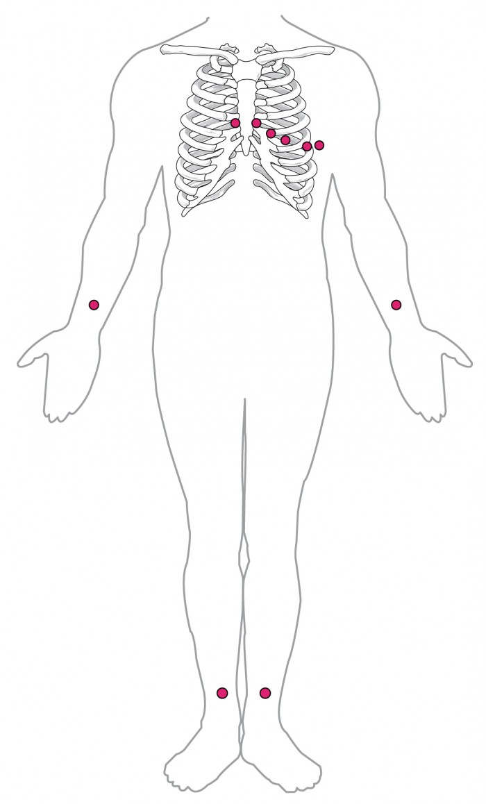 hight resolution of this diagram shows the points where electrodes are placed on the body for an ecg