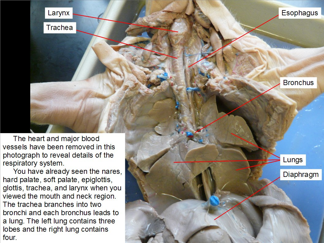 hight resolution of the heart and major blood vessels have been removed in this photograph to reveal details of