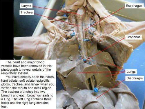small resolution of the heart and major blood vessels have been removed in this photograph to reveal details of