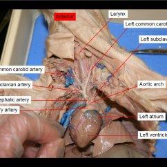 External Fetal Pig Muscle Diagram Sentence Diagramming Program Reading Dissection Biology Ii Laboratory Manual Figure 36 Aortic Arch Left Atrium Brachiocephalic Artery Common Carotid