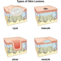 Pimples On Cheek Diagram 1977 Kz1000 Wiring Anatomy And Normal Microbiota Of The Skin Eyes | Microbiology
