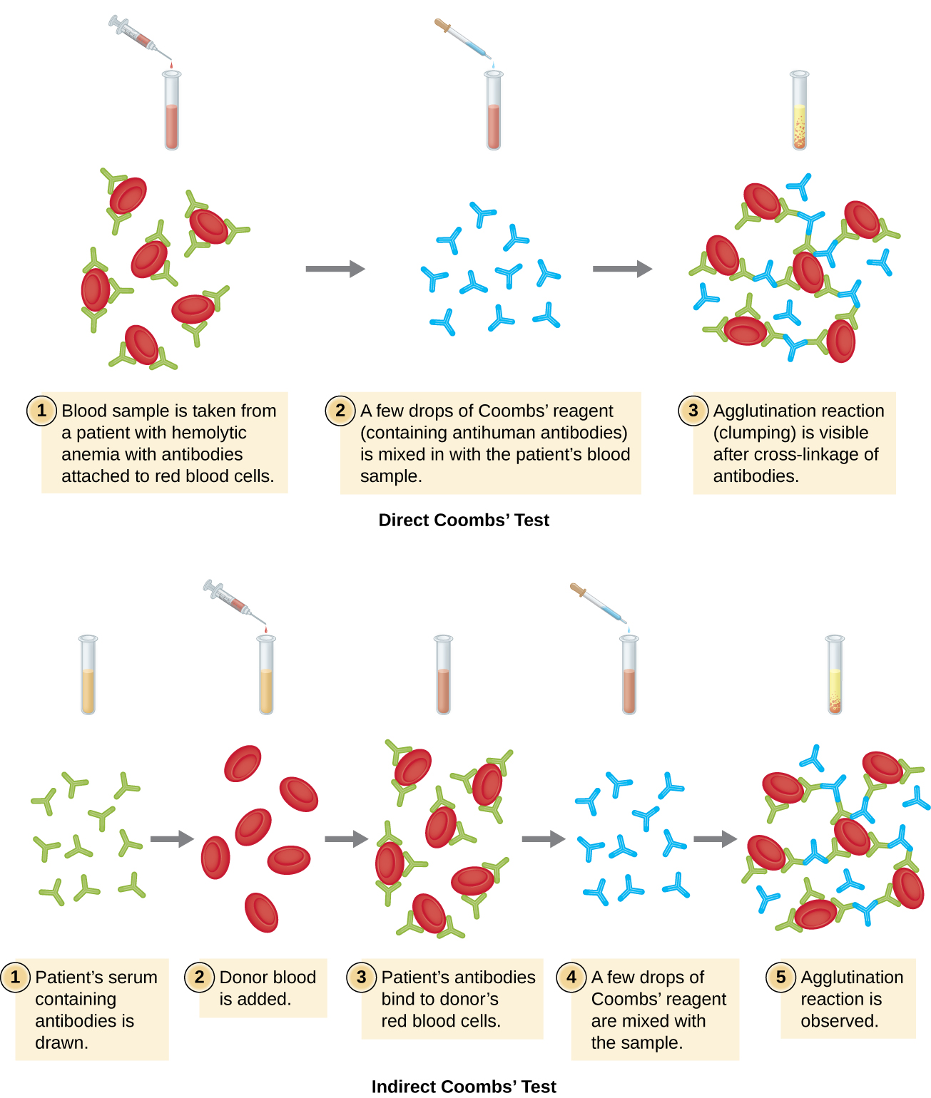 hight resolution of a diagram of direct coomb s test 1 blood sample from a patient with