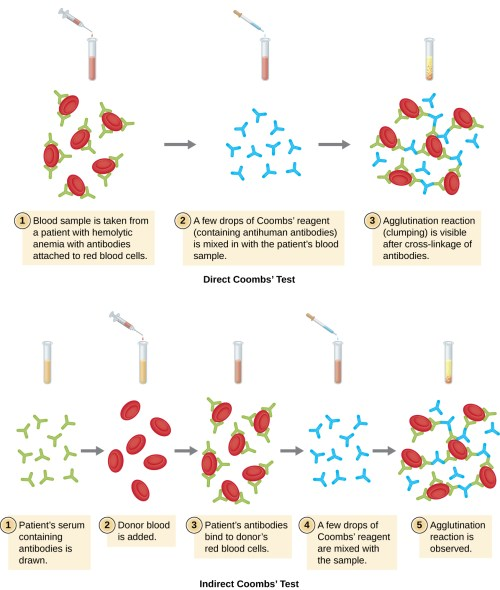 small resolution of a diagram of direct coomb s test 1 blood sample from a patient with