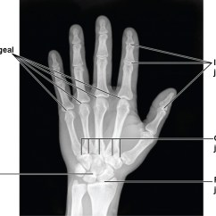 Wrist And Hand Unlabeled Diagram Wiring For Switch With Pilot Light Bones Of The Upper Limb Anatomy Physiology I This Image Shows A Radiograph Human