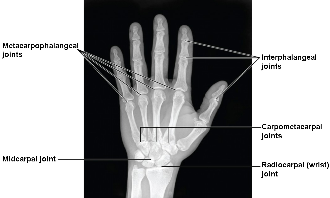 wrist and hand unlabeled diagram label the ear anatomy bones of upper limb physiology i this image shows a radiograph human