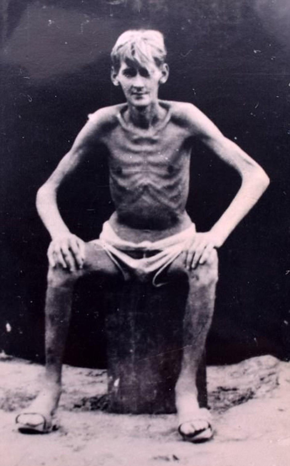 Un soldado británico, reducido a piel y huesos