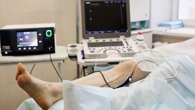 Las trombosis son una de las principales causas de muerte y discapacidad en todo el mundo(Getty Images)