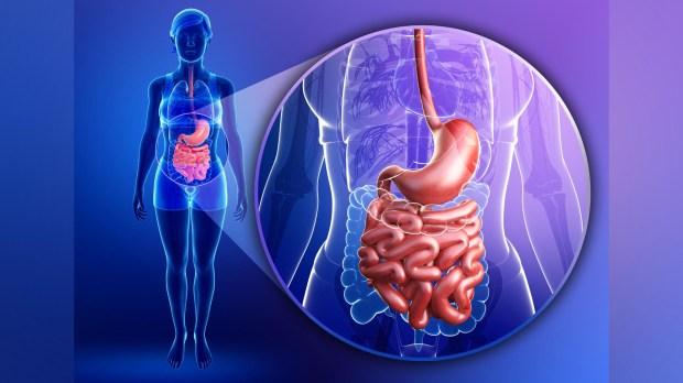 Los tumores del estroma gastrointestinal comprenden menos de 1% de todos los tumores del tracto gastrointestinal (Getty Images)