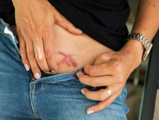 Cómo funciona la secta sexual NXIVM que marca con fuego en la pelvis a las mujeres - Infobae