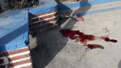En la vía pública atacaron a la regidora electa de Morena en Mazatepec (Foto: Twitter IramZambrano1)