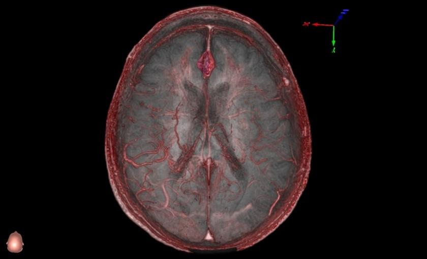 Al alimentar el programa de RV con TC y RNMreales, los médicos se preparan sobre el paciente concreto, no a partir de imágenes generales.(Universidad de Stanford)