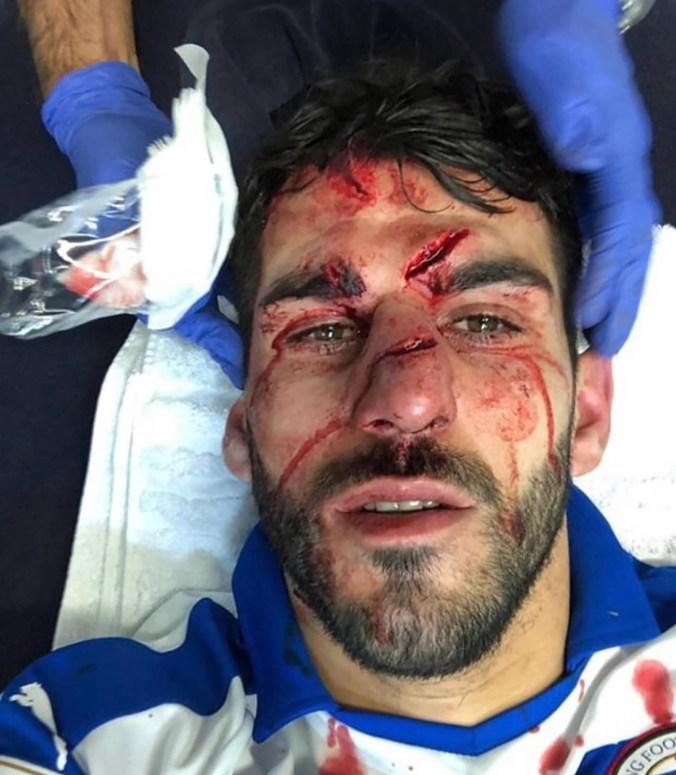 Los cortes que sufrió el delantero tras el cruce con su rival (@AdamGoodwin__)