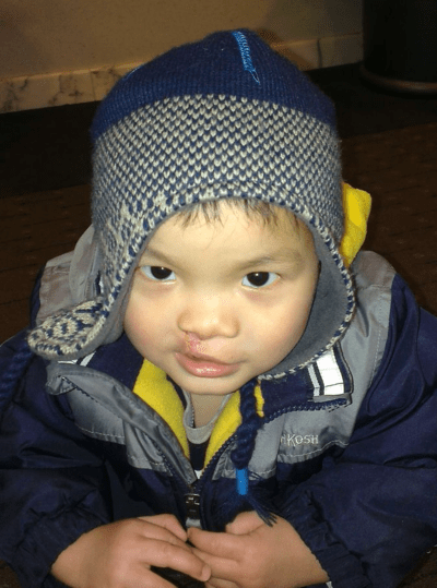 china adoption cleft lip cleft palate