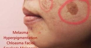 Melasama, Ayurveda, hyperpigmentation. Pigmentation On Face, Melasma, And Hyperpigmentation Causes