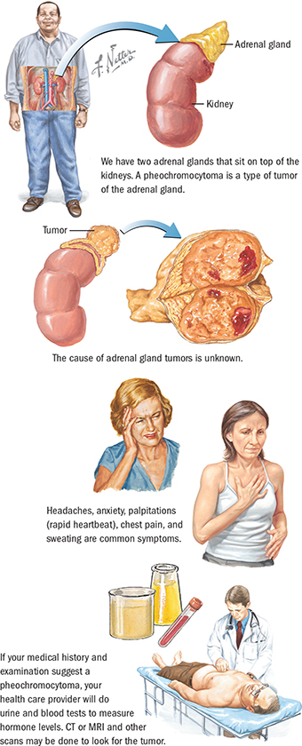 More about Adrenal Cancer | Spectrum Health