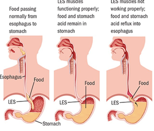 What Is Gastroesophageal Reflux Disease Gerd