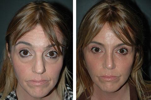 Lower Eyelid Surgery   Best Lower Blepharoplasty New York