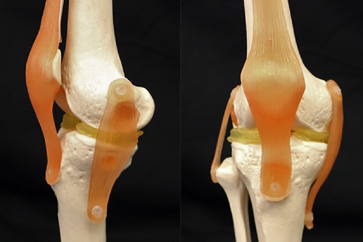 3D printing could help repair damaged knees with cartilage