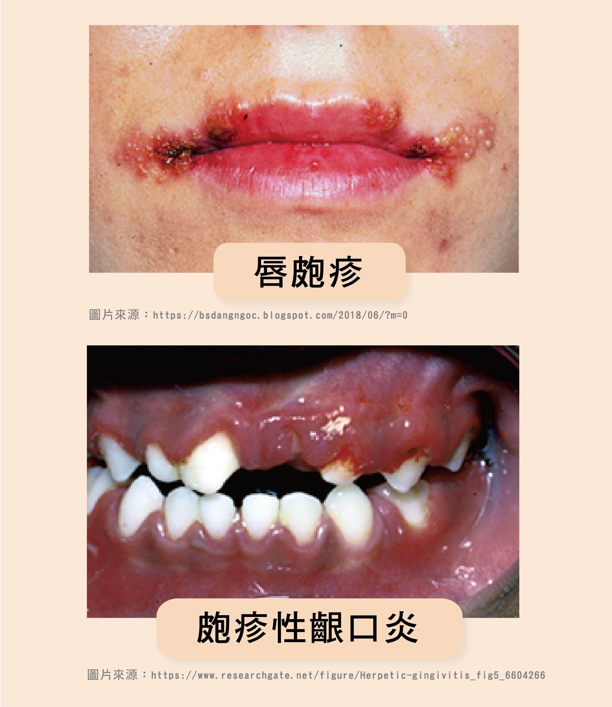 唇皰疹/文:黃瀚霆醫師 - 潮代診所 林黑潮 減肥 減重 瘦身 門診 健康減重