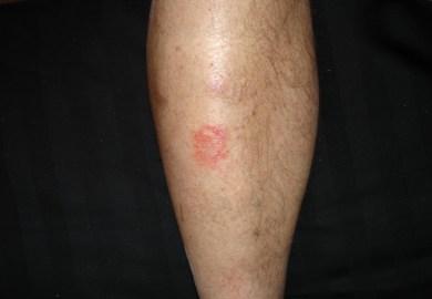 Fungus On Legs Symptoms Photos
