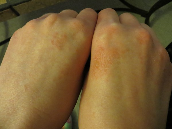 small itchy bumps on my hands dermatology medhelp small