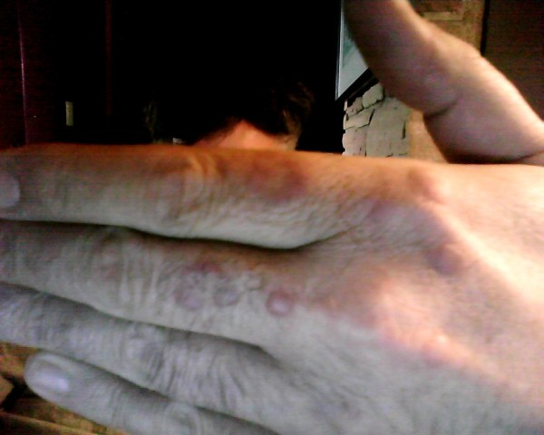 I have round raised red bumps on my hands that do not itch