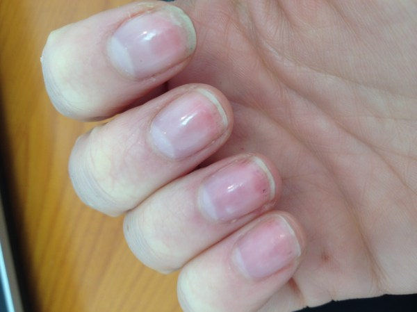 20+ Splinter Hemorrhage Under Nail Pictures and Ideas on Meta Networks