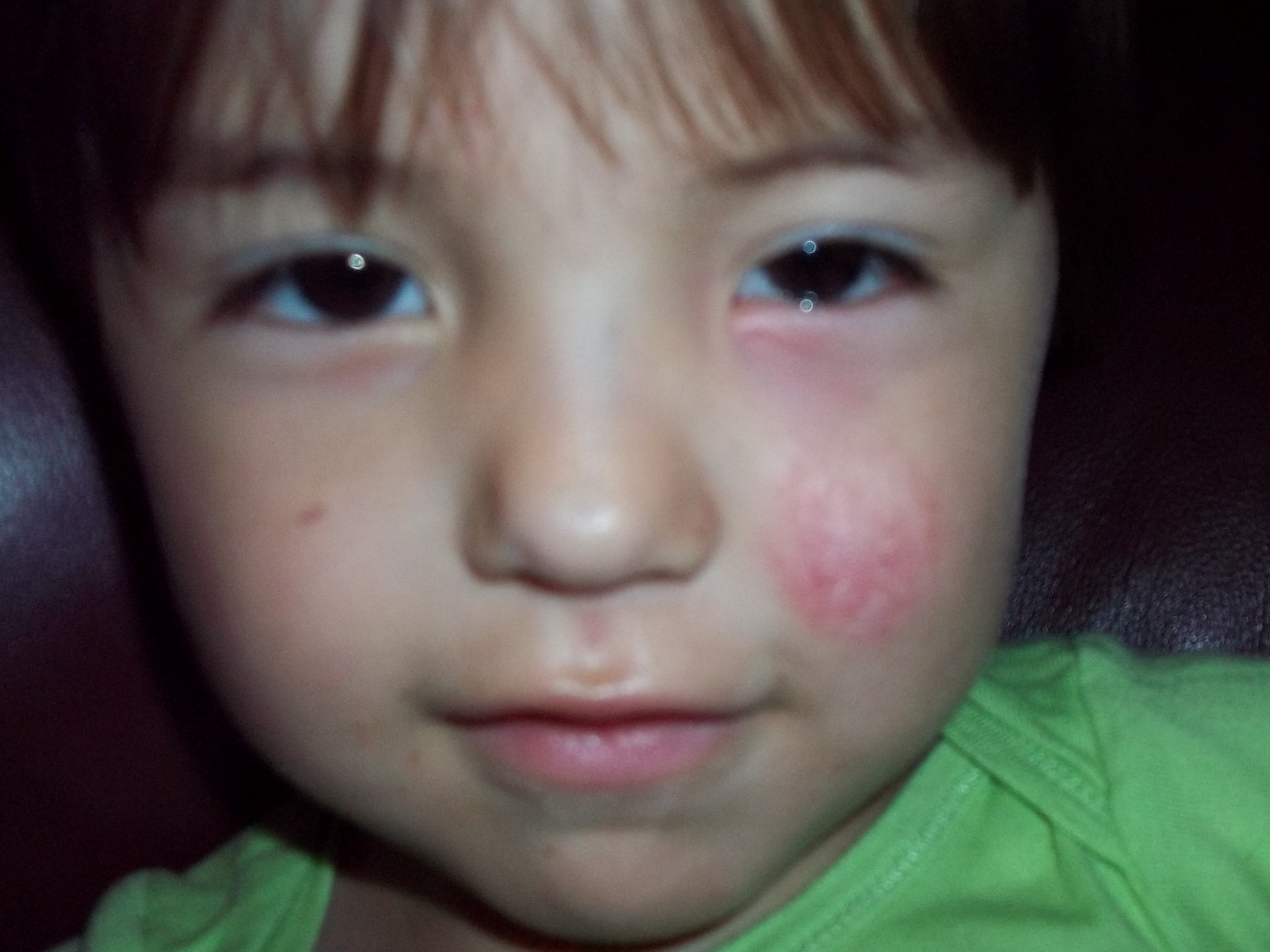 My 2 year old has had a rash on his face for over a month.