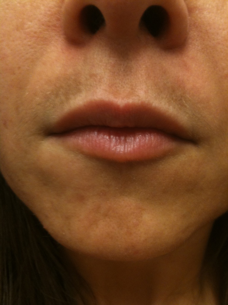 upper lip discoloration mustache skin. Black Bedroom Furniture Sets. Home Design Ideas