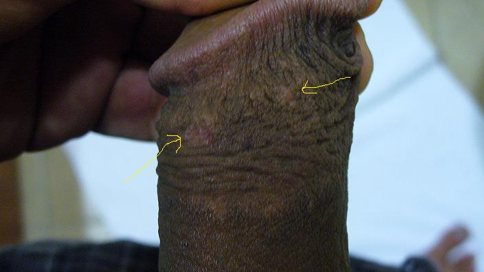 Getting Checked For Herpes What To Do? 1