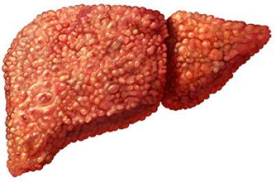 Резултат слика за Hepatitis C liver