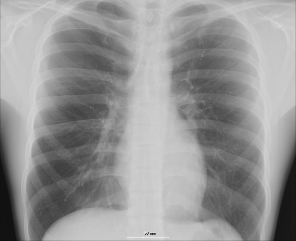 Chest Xray Patchy Densities