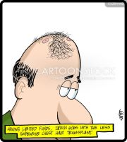 hair transplant cartoons and comics