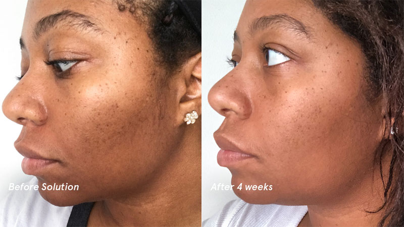 Glycolic Skin Care Products