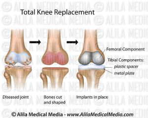 Alila Medical Media | Total knee replacement surgery