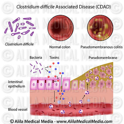 gram positive cell wall diagram kenmore 80 series dryer belt alila medical media | microbiology & pathology images videos