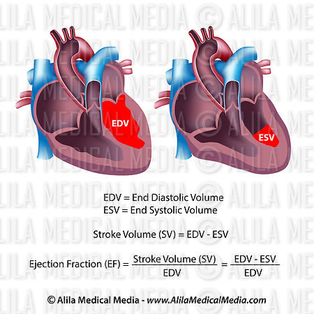 unlabeled heart diagram cross section sunpro super tach 3 wiring alila medical media ejection fraction ef