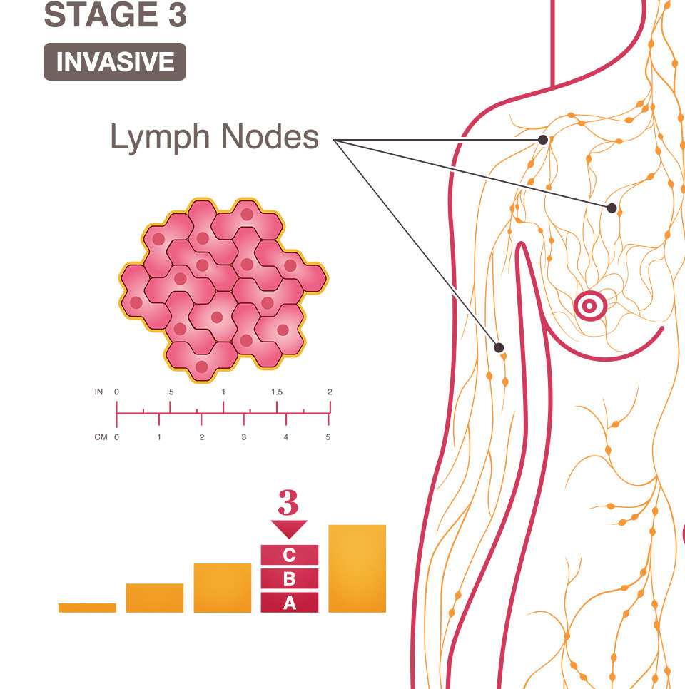 hight resolution of breast cancer stage 3