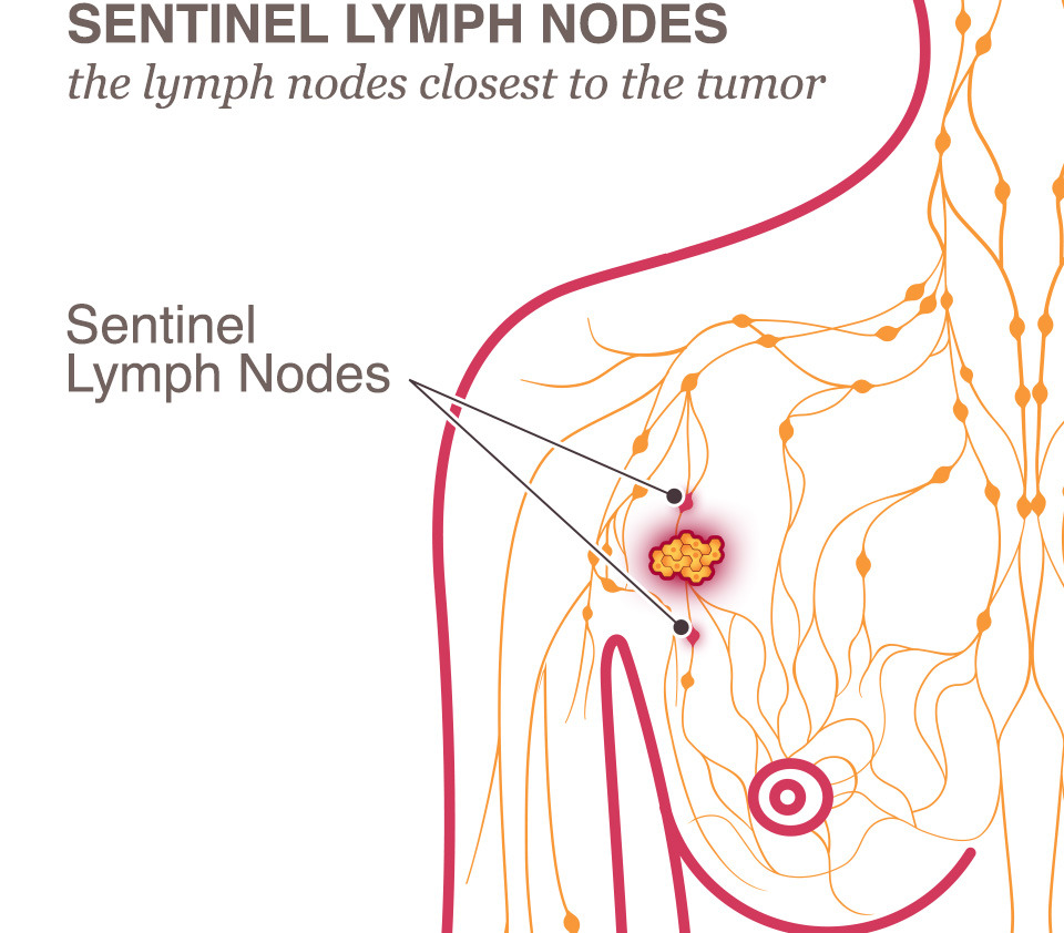 hight resolution of breast cancer treatment lymph node sentinel