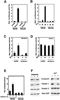 Notch signaling is a direct determinant of keratinocyte