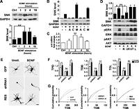 Serum inducible kinase is a positive regulator of cortical