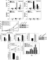 Crosstalk between PKCα and Notch-4 in endocrine-resistant