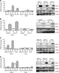 PDK-1 regulates lactate production in hypoxia and is