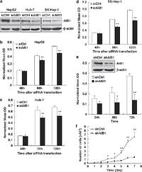 Overexpression of transcriptional coactivator AIB1