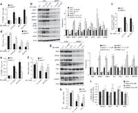 MST1 is a key regulator of beta cell apoptosis and